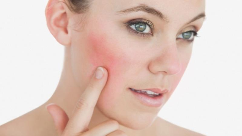 El enrojecimiento facial tiene Solución.